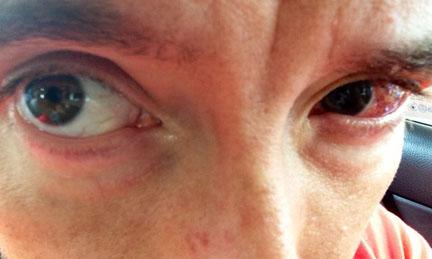 My first photo of my chewed up eye. - Singapore