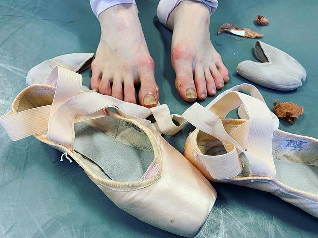 ballet on stage= grace and elegance ballet backstage= bandaids and blisters  #ballerinafeet #ballet #ballerina #dancer #ballerinasofig #picoftheday #sophiabovet #lifeoftheballerina #dreambig #workhard #bekind #southlandballetacademy #bandaid