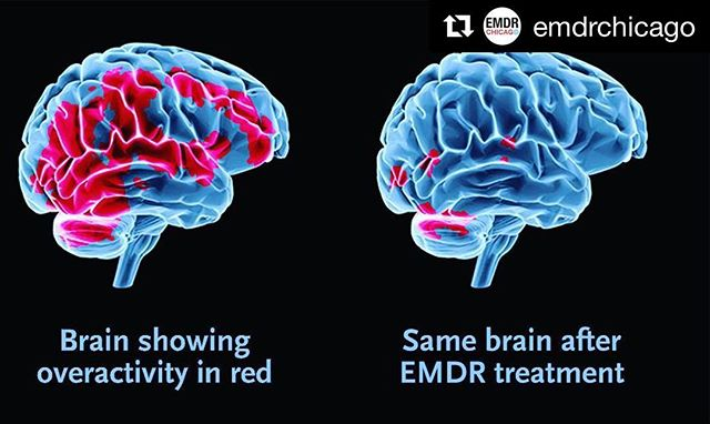 There's a huge body of research on EMDR therapy. An abbreviated list of what it can treat: trauma, PTSD, addiction, eating disorders, depression, anxiety, low self-esteem, sexual abuse, relationship pain, anger, everyday ups and downs, performance anxiety, dissociation... etc. If you want more info on how it works or how I could help, hit me up. Now accepting new clients! #meganbonyngetherapy  #emdr #emdrtherapy #therapy #mentalhealth #endthestigma #repost @emdrchicago