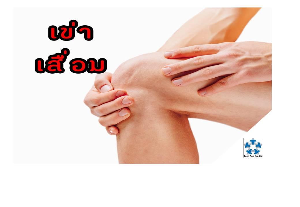 เข่าเสื่อมเป็นโรคที่พบได้บ่อย ในคนสูงอายุและคนอ้วน มักจะเป็นเรื้อรังตลอดชีวิต แต่ไม่มีอันตรายร้ายแรง นอกจากอาการปวดทรมาน เดินไม่ถนัด ขาโก่ง เข่าทรุด อันตรายร้ายแรงมักเกิดจากการใช้ยาอย่างผิดๆ ดังนั้น จึงต้องเรียนรู้วิธีอยู่กับโรคนี้อย่างมีความสุขและปลอดภัย    สาเหตุ  เกิดจากการเสื่อมชำรุดหรือการสึกหรอ ของข้อเข่า ซึ่งเป็นผลมาจากการใช้งานมาก การบาดเจ็บ หรือมีแรงกระทบกระแทกต่อข้อมาก (เช่น น้ำหนักมาก เล่นกีฬาหนักๆ) ทำให้กระดูกอ่อนที่บุอยู่ตรงบริเวณผิวข้อต่อสึกหรอ และเกิดกระบวนการซ่อมแซม ทำให้มีปุ่มกระดูกงอกรอบๆ ข้อต่อ ปุ่มกระดูกที่งอกบางส่วน จะหักหลุดเข้าไปในข้อต่อ ทำให้ขัดขวางการเคลื่อนไหวของข้อต่อ และข้อต่อมีเสียงดังเวลาเคลื่อนไหว  การงอเข่า เช่น นั่งยองๆ นั่งขัดสมาธิ นั่งพับเพียบ การเดินขึ้น-ลงบันได เป็นต้น จะทำให้เกิดแรง กดดันที่ข้อต่อ เป็นเหตุให้ผิวข้อเสื่อมได้เช่นกัน  เมื่อข้อเข่าเสื่อม ก็จะส่งผลให้กล้ามเนื้อและเส้นเอ็นรอบๆ ข้อเข่ามีการอักเสบและอ่อนแอร่วมไปด้วย ทำให้เกิดอาการปวดเข่า เข่าอ่อน (เข่าทรุด) และเมื่อเป็นมากๆก็จะทำให้เกิดอาการขาโก่ง  โรคเข่าเสื่อม จึงพบมากในคนสูงอายุ (มักพบในผู้หญิงอายุมากกว่า 55 ปีขึ้นไป) คนอ้วน คนที่เล่นกีฬาที่มีการกระแทกของข้อเข่ารุนแรง คนที่ชอบนั่งงอเข่า หรือต้องเดินขึ้น-ลงบันไดบ่อย   อาการ  ผู้ที่มีข้อเข่าเสื่อมอาจมีอาการผิดปกติที่เข่าข้างเดียว หรือ 2 ข้างก็ได้   อาการที่พบบ่อย ก็คือ อาการปวดเวลาเคลื่อน-ไหวข้อเข่า จะลุกจะนั่งจะรู้สึกขัดยอกในข้อเข่า โดยเฉพาะอย่างยิ่งเวลาเดินขึ้น-ลงบันได หรือเวลานั่งงอเข่านานๆ เวลาขยับ หรือเคลื่อนไหวข้อเข่า จะมีเสียงดังกรอบแกรบในข้อเข่า มักจะเกิดจากการเสียดสีของผิวข้อต่อที่ขรุขระ และจะมีการสะดุด หรือติดขัดในข้อ เนื่องจากเศษกระดูกงอกหักหลุดเข้าไปขัดขวางในข้อต่อ ผู้ที่มีกล้ามเนื้อรอบๆเข่าอ่อนแรง ก็จะมีอาการเข่าอ่อน เข่าทรุด บางครั้งอาจทำให้เกิดการพลัดตกหกล้มได้ เมื่อเข่าเสื่อมรุนแรง ผู้ป่วยจะมีอาการขาโก่ง เดินไม่ถนัด เดินคล้ายขาสั้นข้างยาวข้าง (ลงน้ำหนักไม่เต็มที่ หรือเอนตัวเพราะเจ็บเข่าข้างหนึ่ง) บางคนเดินกะเผลกหรือโยนตัวเอนไปมา บางคนอาจงอเหยียดเข่าลำบาก หรือกล้ามเนื้อขาลีบลง ในรายที่มีข้อเข่าอักเสบมาก นอกจากปวดเข่า รุนแรงแล้ว ยังมีอาการบวมของข้อเข่าร่วมด้วย อันเนื่องมาจาก ข้อมีการผลิตน้ำในข้อมากขึ้นกว่