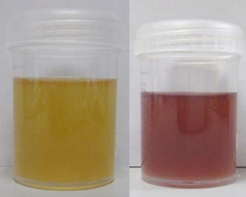 Purple urine in Porphyria (right)