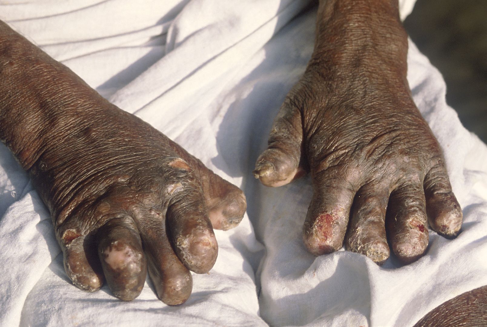 leprous hands