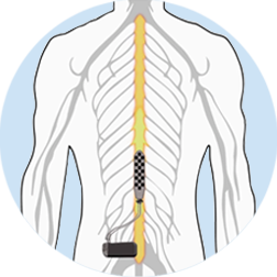 Picture illustrates the location of the epidural stimulator in the spine.
