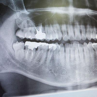 Digital Dental X-Ray Technology