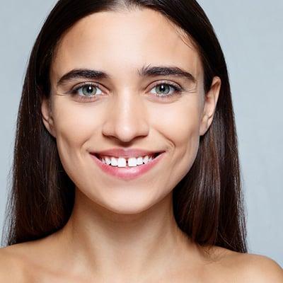 Veneers to Fix Gaps in Teeth