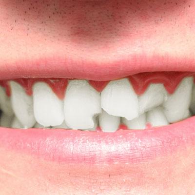 Dental Bonding Treatment Powder Springs