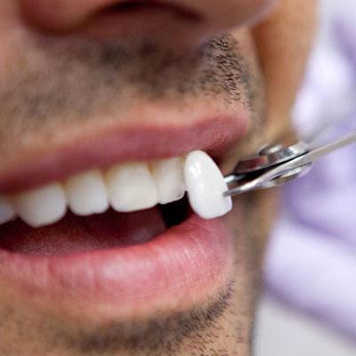 Thin Dental Veneers