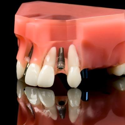 Dental Implants Restoration