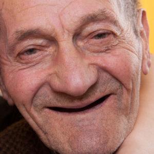 sunken-face-missing-teeth-square-2-300x300.jpg