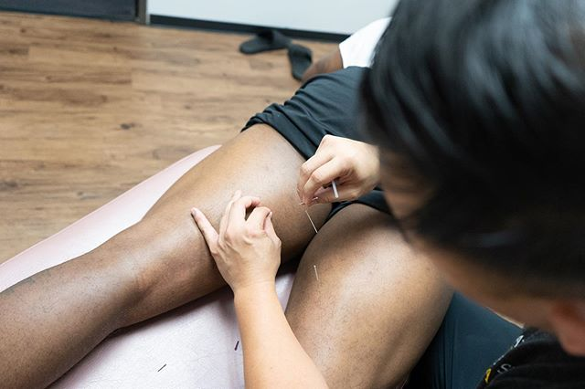 Dry needling from the 🐐 @dr.tonytran . . Dry needling helps decrease pain and improves function through the release of myofascial trigger points (knots in the muscle).