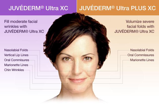 Juvederm-Ultra-XC-Xanadu.png