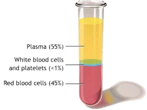 plasma.jpeg