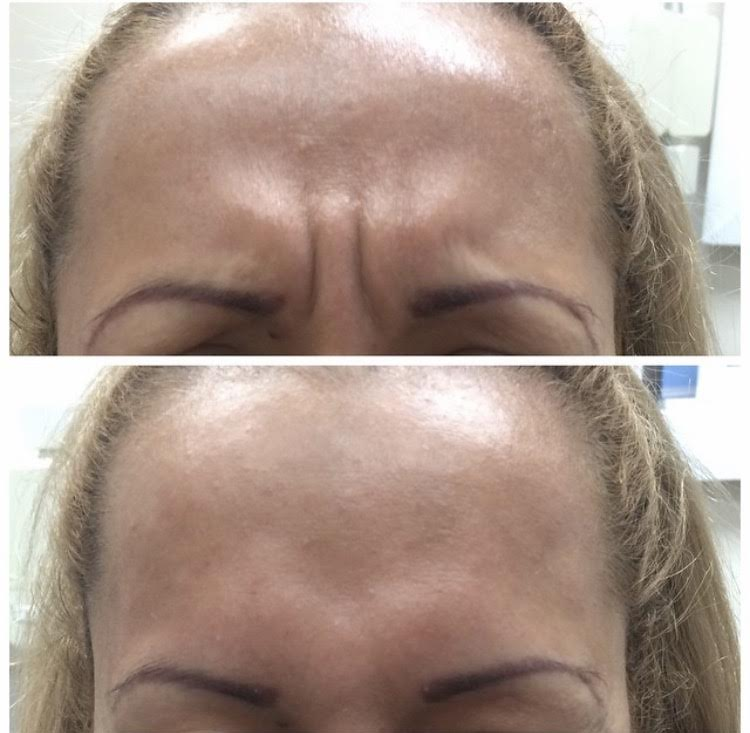 Botox3.jpeg