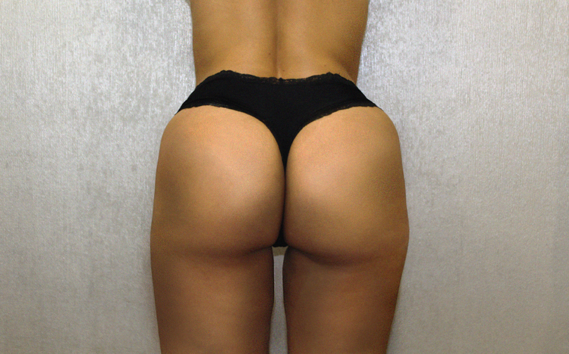 The Sculptra Butt Lift — Cosmetic & Laser Dental Studio