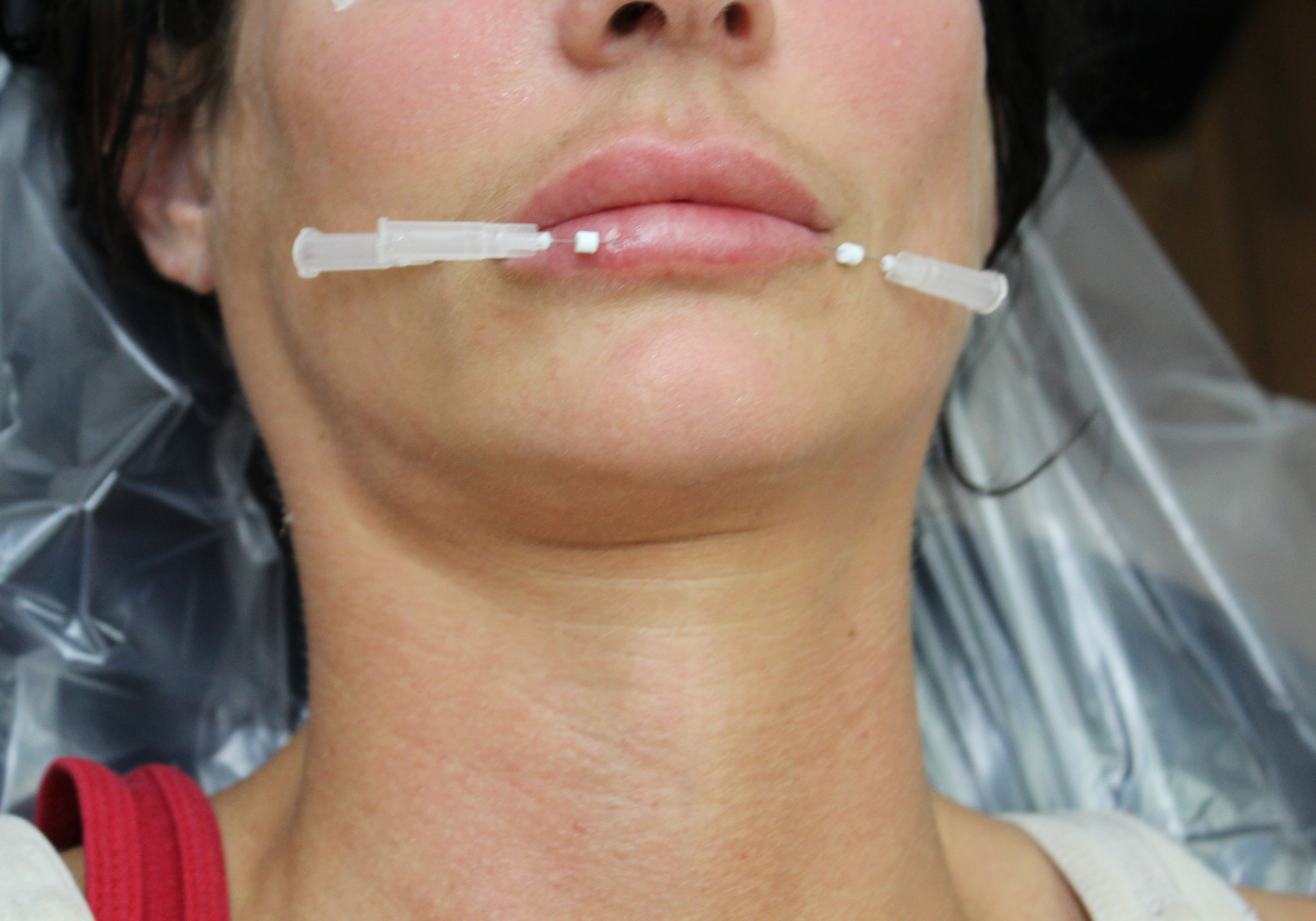 Facial Threads — Cosmetic & Laser Dental Studio