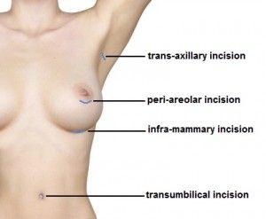incisions.jpg