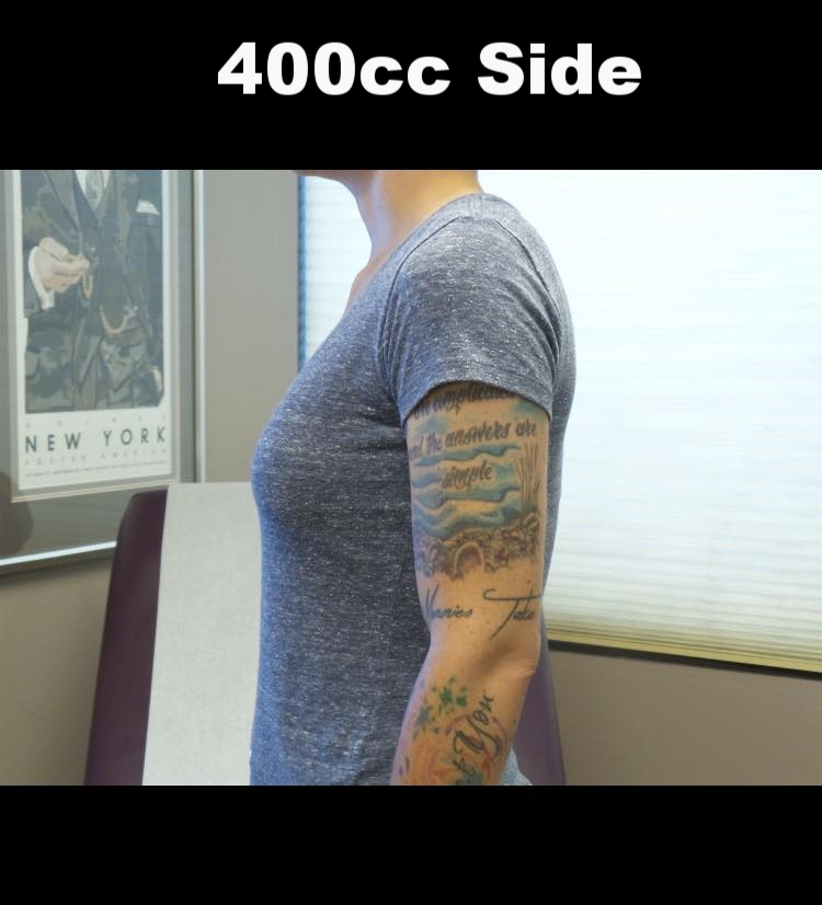 400 cc side.jpg