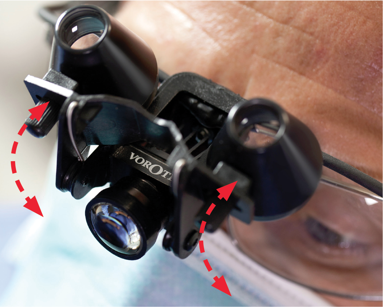 Precise Flip-Up Design - The loupes can be easily rotated in and out of use, returning back into the exact set-up position. Upward rotation of the loupes allows uninterrupted vision
