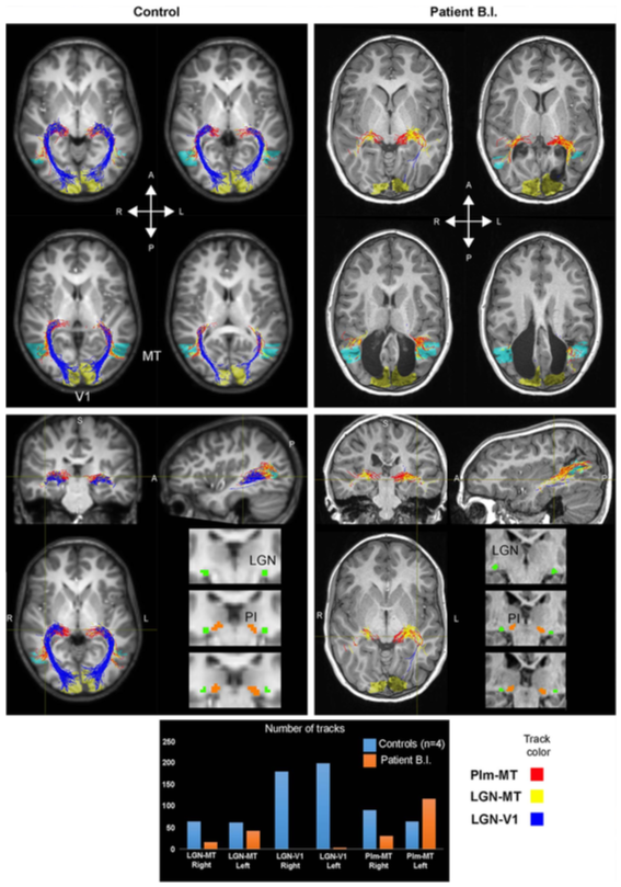 PUBLICATION IN NEUROPSYCHOLOGIA