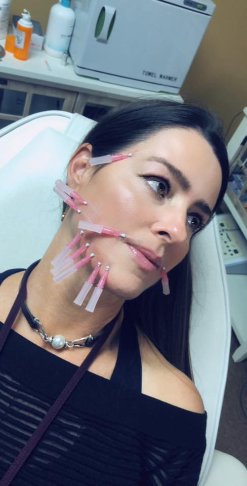 Thread Face Lift: Lift your trouble areas! 4