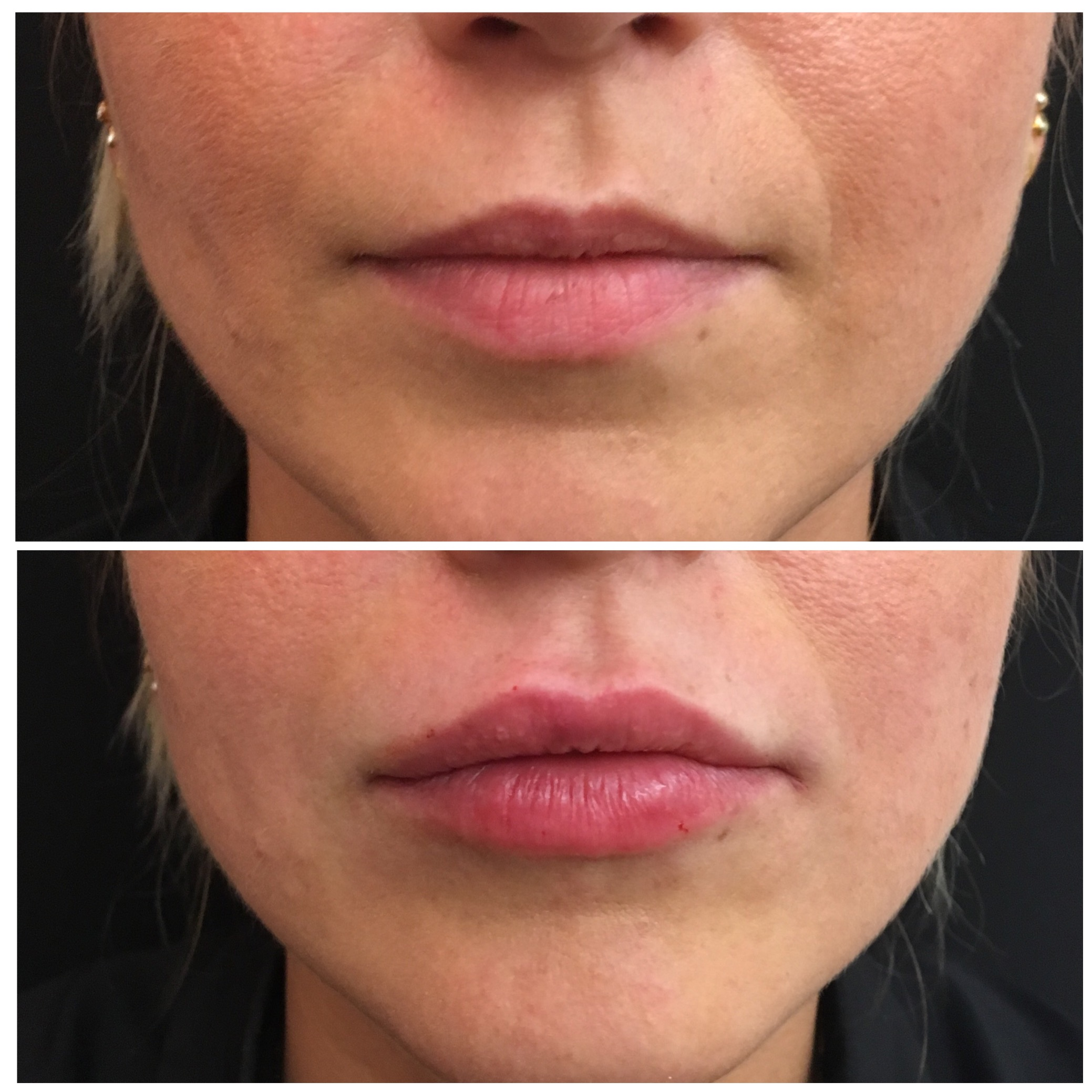 Lip augmentation can maintain the natural lip shape and create a plumpness to the lip volume and accentuate the cupids bow.