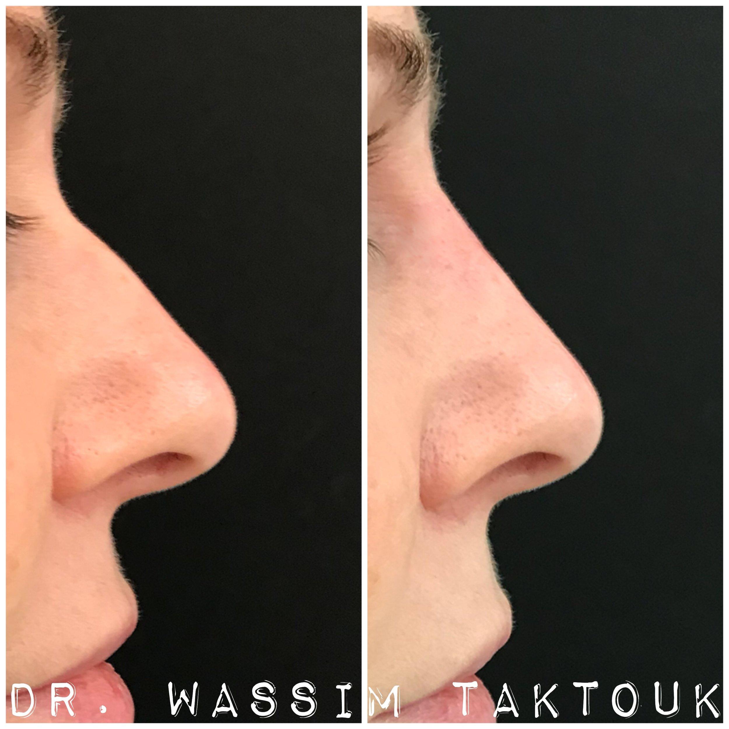 ann nose.JPG