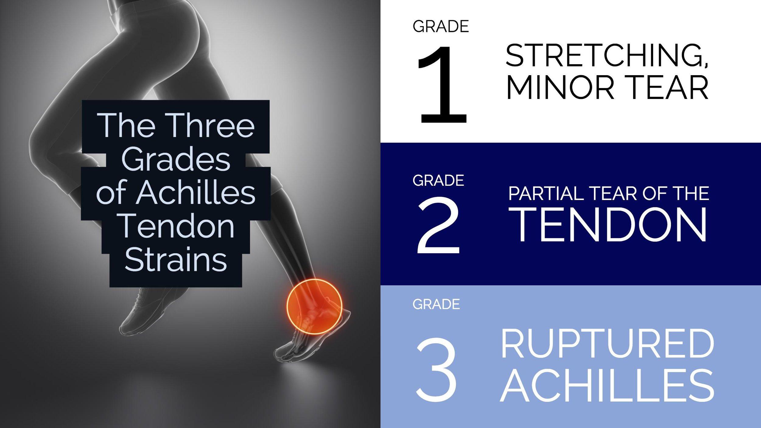 The Three Grades of Achilles Tendon Strains