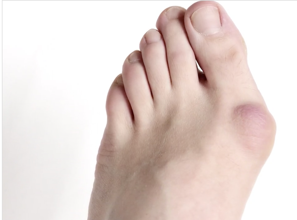 types-of-foot-surgery