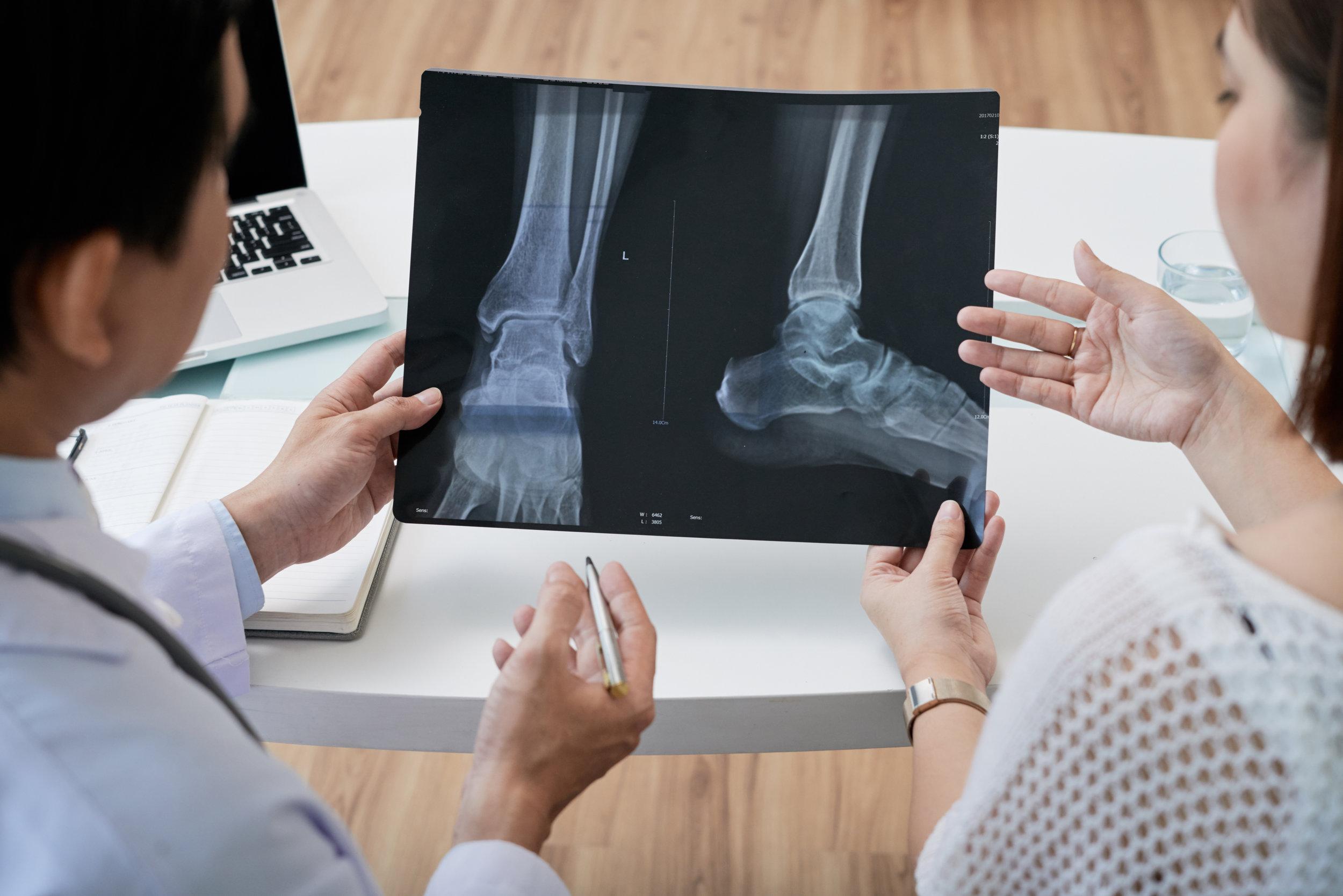 ankle-surgeon