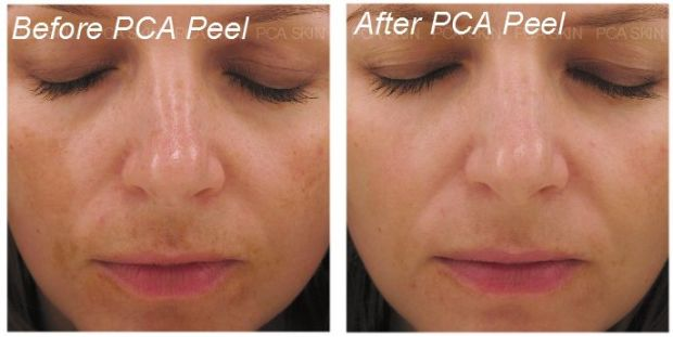 pca-before-and-after-1.jpg