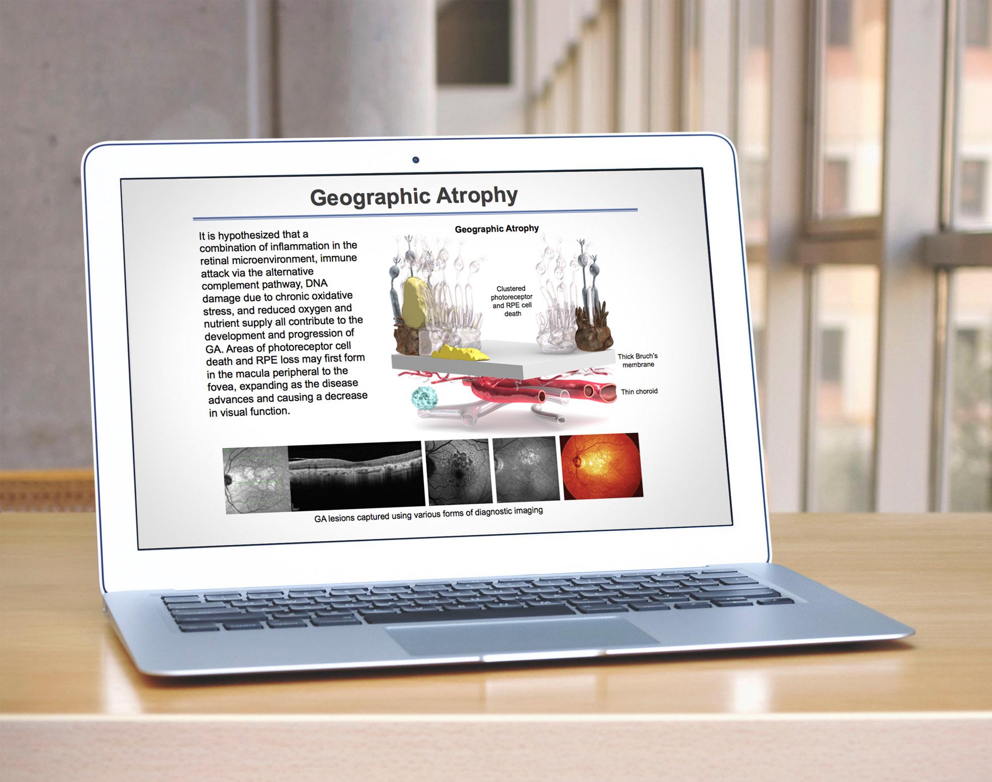 Geographic Atrophy Presentation.jpg