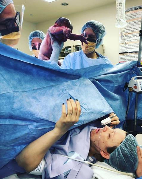 Surgical Birth