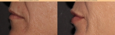 Lip injections give natural looking results for younger looking lips!