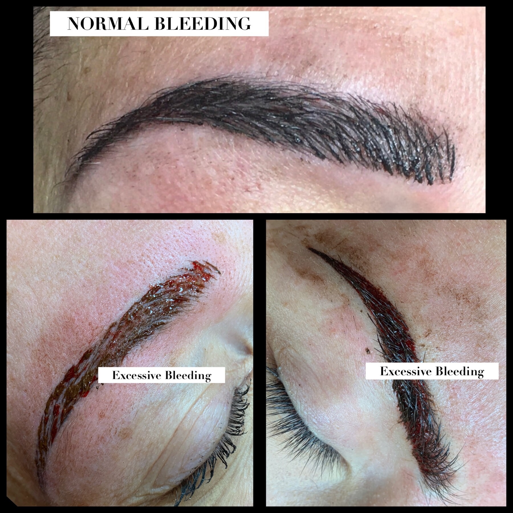 Pre-Procedure Instructions — Forever Beautiful by Constantina