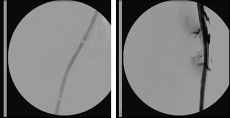 Angiogram immediately post graft cannulation. - No extravasation (leakage of blood) from Bullet Proof graft (left), severe extravasation from standard graft (right).