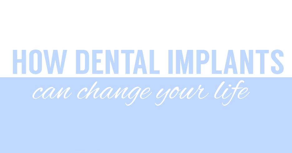dentalimplantslifechnge-copy