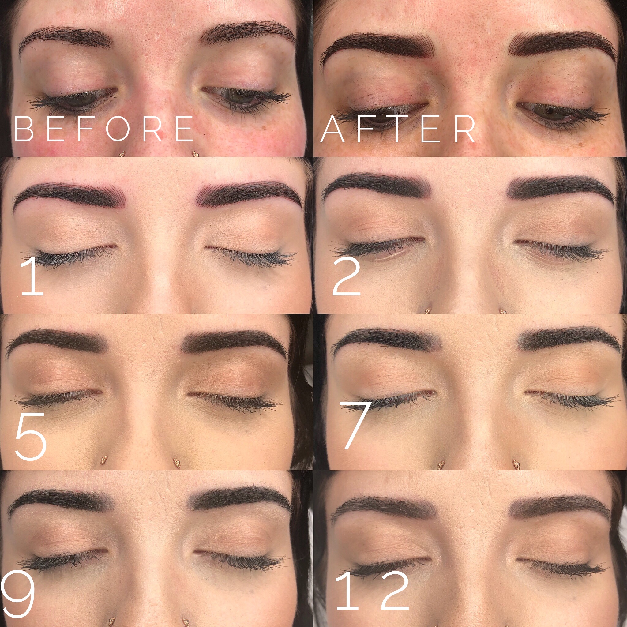 Microblading Healing Stages - Here is an example of what a brow looks like while healing. The Color starts off pretty Vibrant then gets very dark as the scabs form. Redness goes away after a couple of days and a couple days after that the scabs start to exfoliate off. Please remember the healing is a process and it is important to not judge your brows for about 3 weeks after having them done. The procedure can cause slight swelling that can make the brow seem