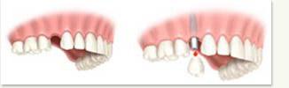 single_tooth_embed2.jpg
