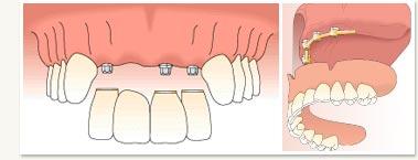multi_tooth_embed2.jpg