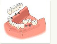multi_tooth_embed3.jpg