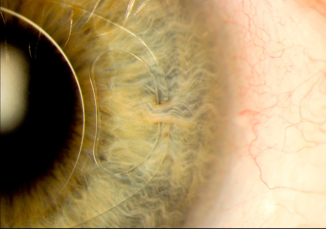 This image shows an iris clip, also known as intraocular lens, is fitted into the eye. The clip is a small, thin lens made from silicone or acrylic with plastic side supports to hold it in place. It is fixed to the iris through a tiny surgical incision and can treat cataracts and near-sightedness. (Mark Bartley, Cambridge University Hospitals NHS Foundation Trust)