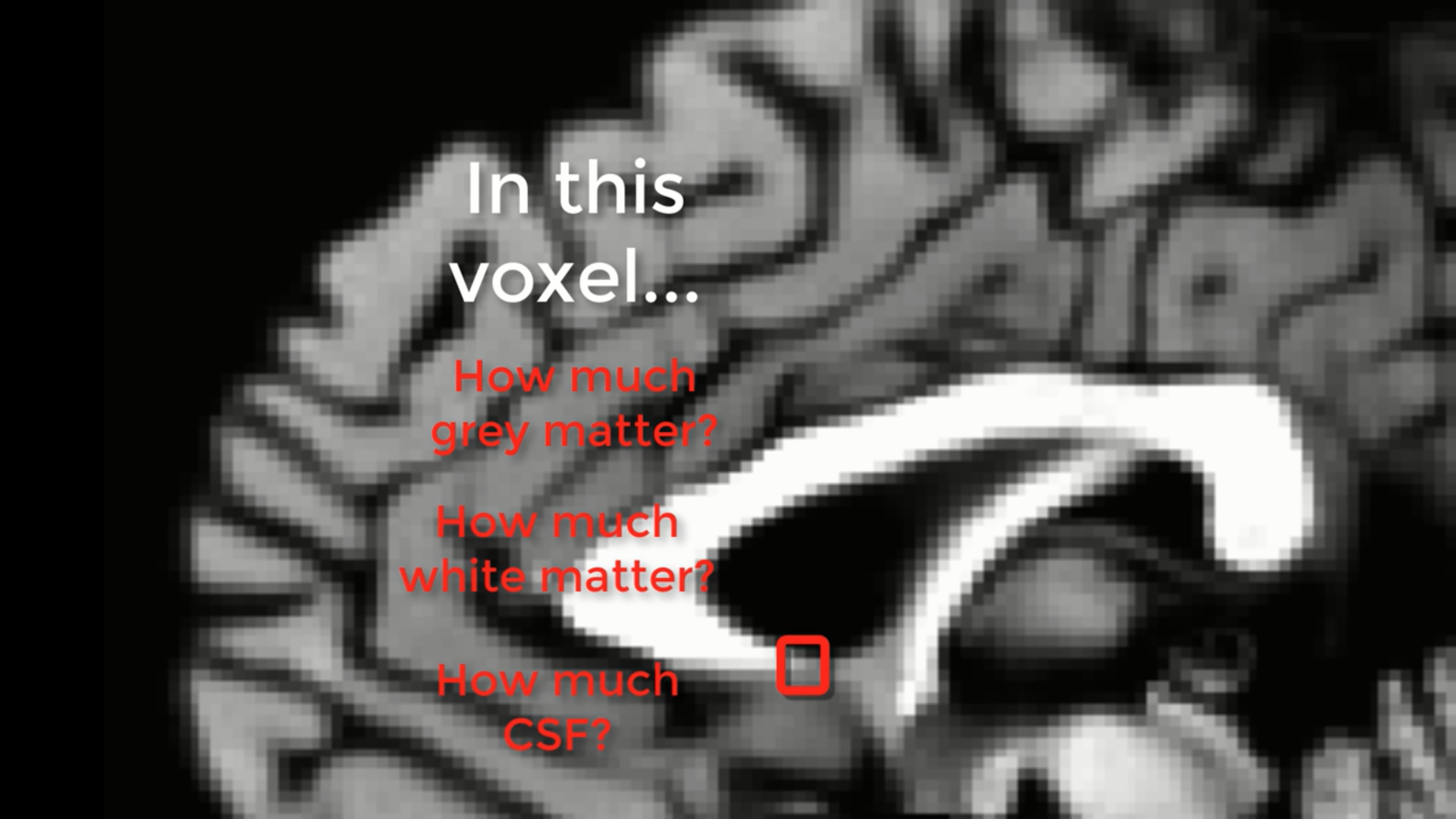 Figure 2: The partial voluming effect in a structural scan. The box highlighted in red represents a voxel that encompasses three different tissue types: White matter, grey matter, and CSF. If you imagine that the greyscale image is a real brain, and our red box is the smallest resolution element of our scan, the red box would be an average of the different tissue types contained within it.