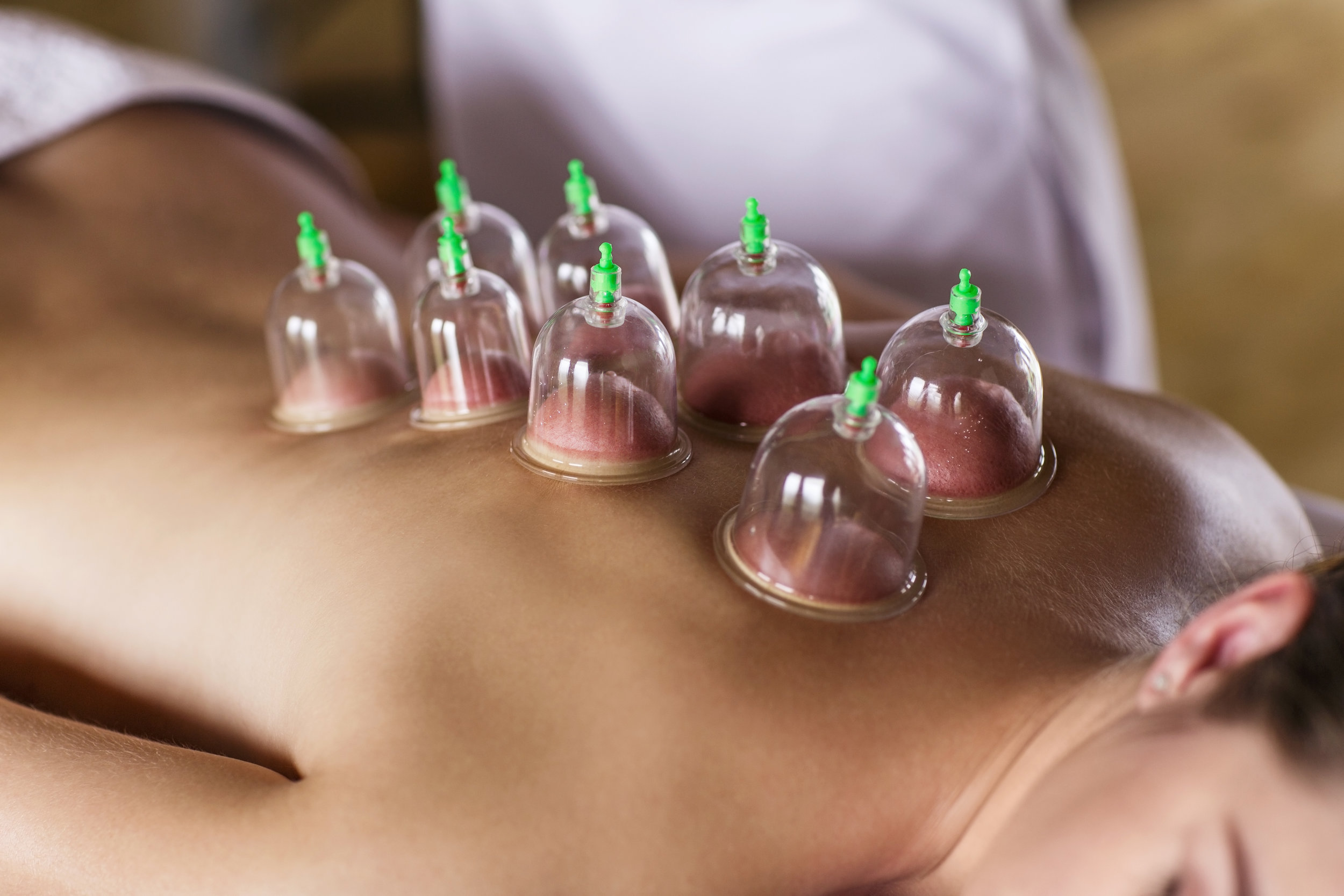 Cupping Therapy - This therapy increases range of motion, decreases pain, decreases soreness, increases blood flow, decreases swelling, decreases inflammation, and decreases the time it takes to heal with certain conditions.
