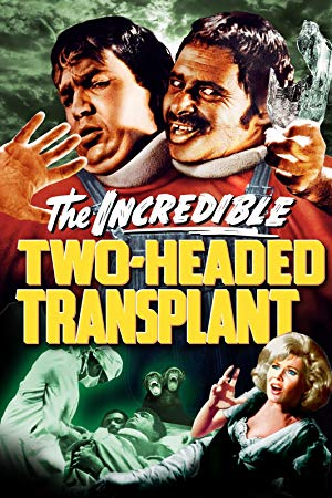 two_headed_transplant.jpg