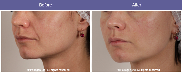 Facial dermal volumizing using microneedling head with RF after 3 treatments.