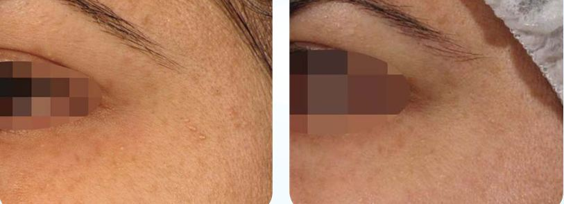After 5 NeoBright weekly treatments. Courtesy of  Pollogen .