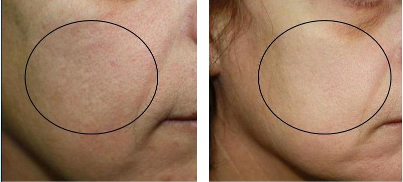 After a series of NeoRevive treatments. Courtesy of  Pollogen.