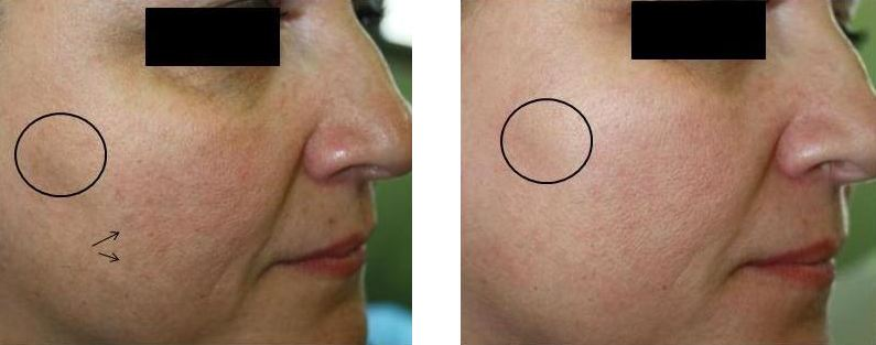After a series of NeoRevive Treatments. Courtesy of    Pollogen   .