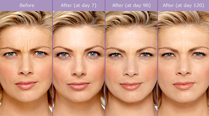 Botox for frown lines. Notice even after the Botox is gone, the frown lines are not as prominent as they were before the injection.