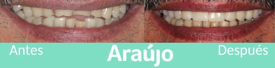Revisa tu boca en A Coruña